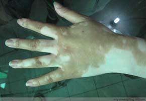 手背上有不明显白斑是怎么回事